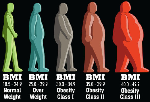 obesitas niveau 1