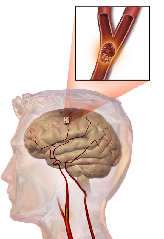 rechter en linker hersenhelft functies