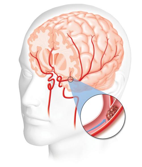 zware hoofdpijn boven op hoofd